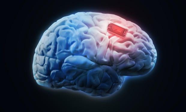 Ilustrasi konsep untuk implan otak manusia